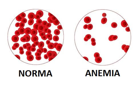 anemia u psa